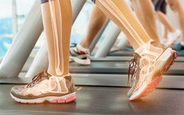 Csontritkulás - VitaminNagyker.hu